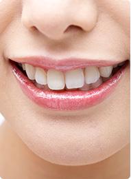 歯を美しくしたい